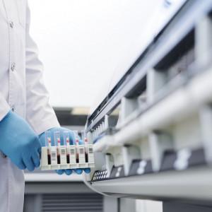 Morfologia krwi z automatycznym rozmazem - badanie laboratoryjne