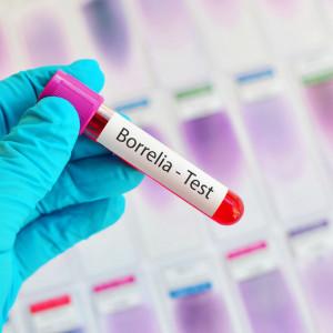 Borelioza - pakiet podstawowy (IgG i IgM)