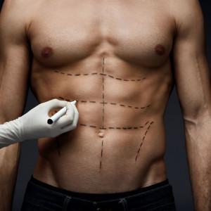 Pakiet przed zabiegiem chirurgicznym komfortowy