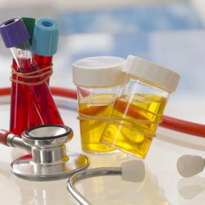 Pakiet przed zabiegiem urologicznym