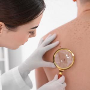 Porada dermatologiczna
