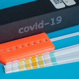 Test COVID-19 RT PCR z wymazu (genetyczny)